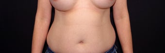 35-44 year old woman treated with Liposuction and Breast Implant Exchange before 2998897