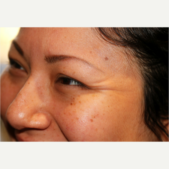 Getting rid of Crow's Feet with Botox before 2780500
