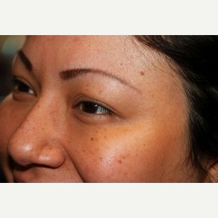 Getting rid of Crow's Feet with Botox after 2780500