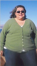 Female Gastric Bypass Patient Lost 175 lb before 916234