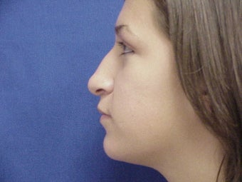 16 Year Old  girl for nasal reshaping 1438039
