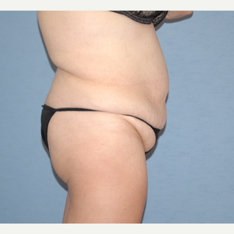 35-44 year old woman treated with Tummy Tuck before 3124633