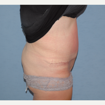 35-44 year old woman treated with Tummy Tuck after 3124633