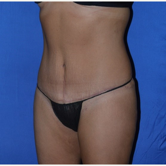 35-44 year old woman treated with No-Drain Tummy Tuck after 3655679