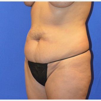 35-44 year old woman treated with No-Drain Tummy Tuck before 3655679
