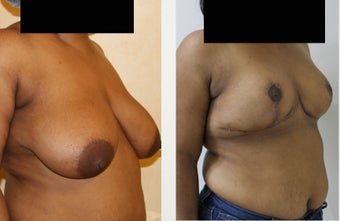 31 year old patient with large saggy breast 1397099