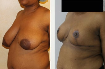 31 year old patient with large saggy breast after 1397099