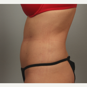 35-44 year old woman treated with radiofrequency-assisted liposuction of the abdomen after 3281546