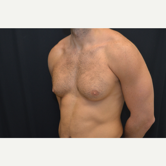 27-year old male - bilateral gynecomastia before 3748996