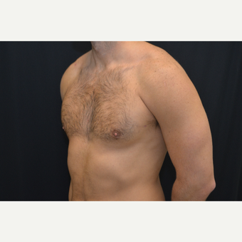 27-year old male - bilateral gynecomastia after 3748996