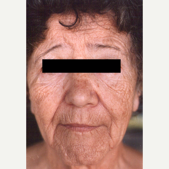 55-64 year old woman treated with Chemical Peel before 3543226