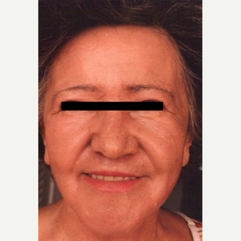55-64 year old woman treated with Chemical Peel after 3543226
