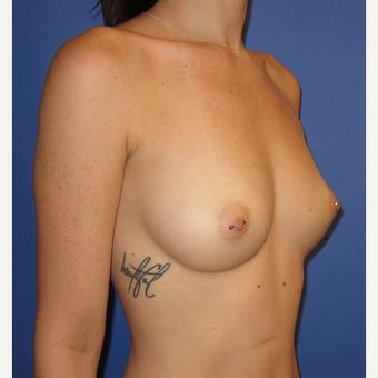 18-24 year old woman treated with Breast Augmentation (one week after surgery) before 3180549