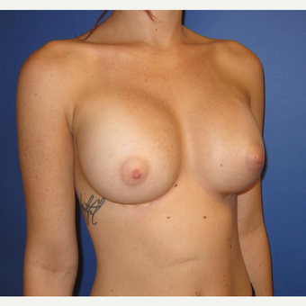 18-24 year old woman treated with Breast Augmentation (one week after surgery) after 3180549