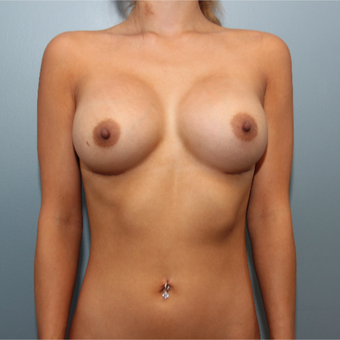 24 year old woman treated with 415cc Silicone Breast Implants after 3544442