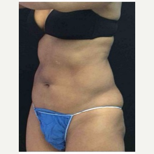 45-54 year old woman treated with CoolSculpting after 3181625