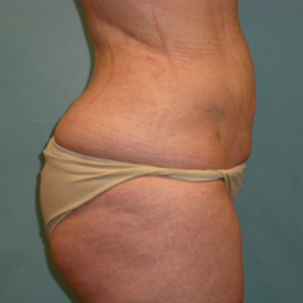 Liposuction after 1804811