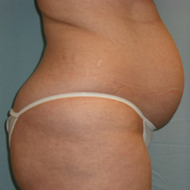 Liposuction before 1804811