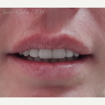 Front teeth accident treated with Smile Makeover after 3119670