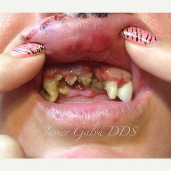 Front teeth accident treated with Smile Makeover before 3119670
