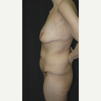 25-34 year old woman treated with Body Lift before 3181669