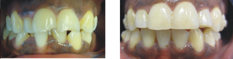 Teeth makeover with Invisalign before 654065