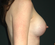 Breast Implants after 3544999