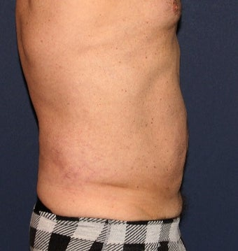 35-44 year old man treated with Liposculpture after 3110369