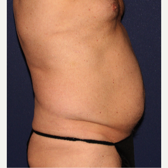 35-44 year old man treated with Liposculpture before 3110369