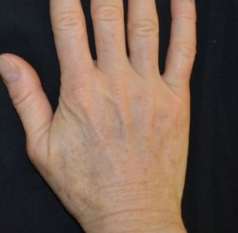 54 Year Old Female Treated for Sun Spots on an Aging Hand 1367269