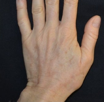 54 Year Old Female Treated for Sun Spots on an Aging Hand after 1367269