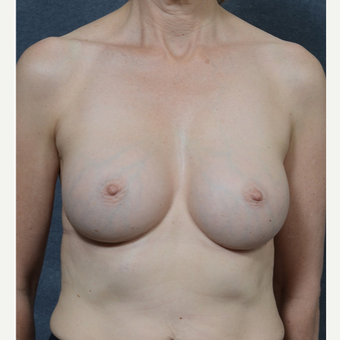 Breast Augmentation after 3816048