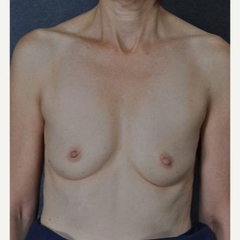 Breast Augmentation before 3816048
