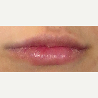 25-34 year old woman treated with Lip Augmentation before 3807447