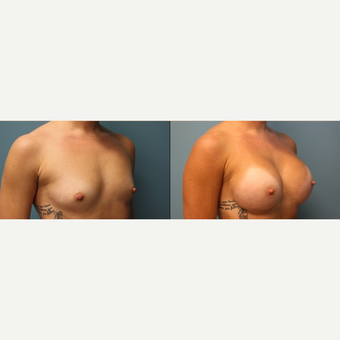 25-34 year old woman treated with Breast Augmentation before 3425094