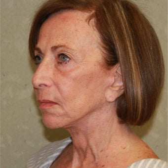 75 and up year old woman treated with Fractional Laser and face and neck lift 1754652