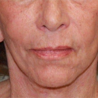75 and up year old woman treated with Fractional Laser and face and neck lift after 1754652