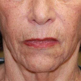 75 and up year old woman treated with Fractional Laser and face and neck lift before 1754652