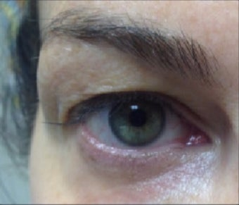 45-54 year old woman treated with Pelleve before 3440750