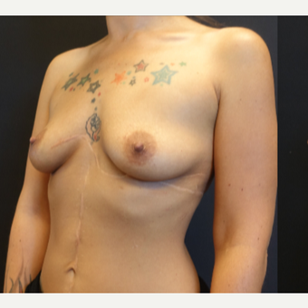 25-34 year old woman treated with Breast Augmentation before 3787608