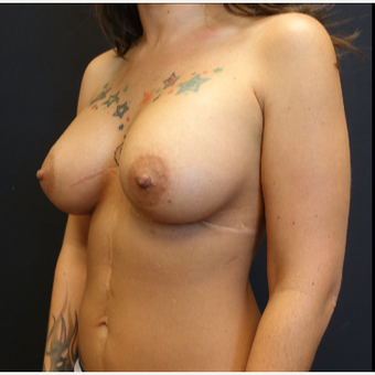 25-34 year old woman treated with Breast Augmentation after 3787608