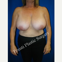 55-64 year old woman treated with Breast Reconstruction before 3006699