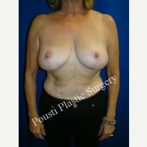 55-64 year old woman treated with Breast Reconstruction after 3006699