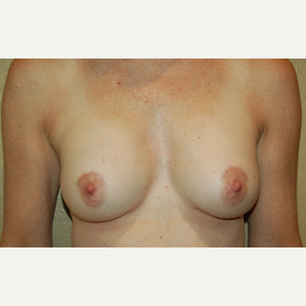 55-64 year old woman treated with Breast Implant Revision after 3798856