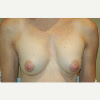 55-64 year old woman treated with Breast Implant Revision before 3798856