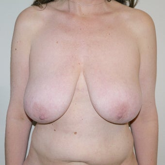 45-54 year old woman treated with Breast Lift before 2381427