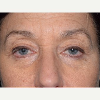 55-64 year old woman treated with Eyelid Surgery after 3093058
