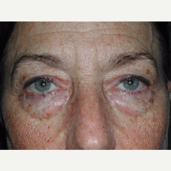55-64 year old woman treated with Eyelid Surgery before 3093058