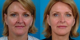 48-year-old woman treated with Facial Fat Transfer. before 3282151