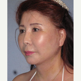 65-74 year old woman treated with Neck Lift after 3650790